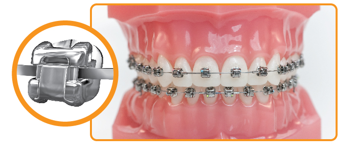 Aparatele dentare și modelarea gingiilor